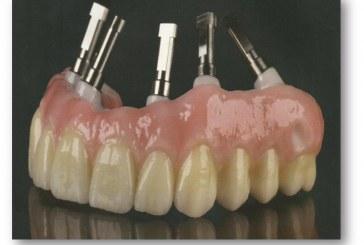 Prothèse dentaire : Pourquoi choisir une couronne zircone