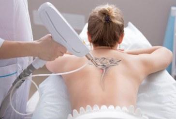 Comment enlever un tatouage récent ?